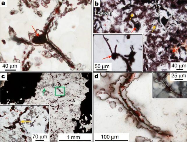 imagen filamentos microcóspicos